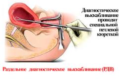 Проведение выскабливание при эндометриозе