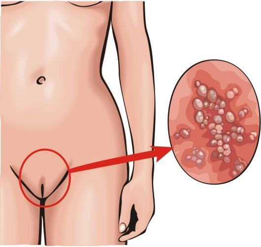Зуд наружных половых органов: лечение