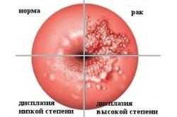 Дисплазия, переходяшая в рак шейки матки