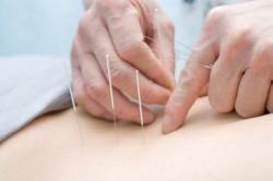Иглоукалывание для лечения опсоменореи