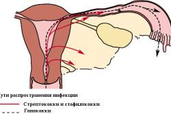 Распространение аднексита