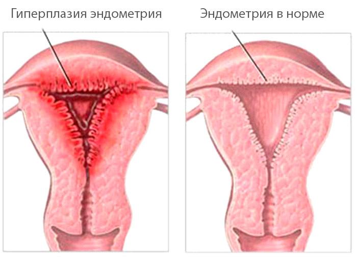 Гиперплазия эндометрия: лечение народными средствами