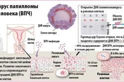 Вирус папилломы человека (ВПЧ) - одна из причин рака шейки матки