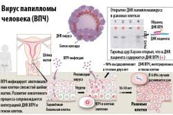 ВПЧ - причина появления лейкоплакии