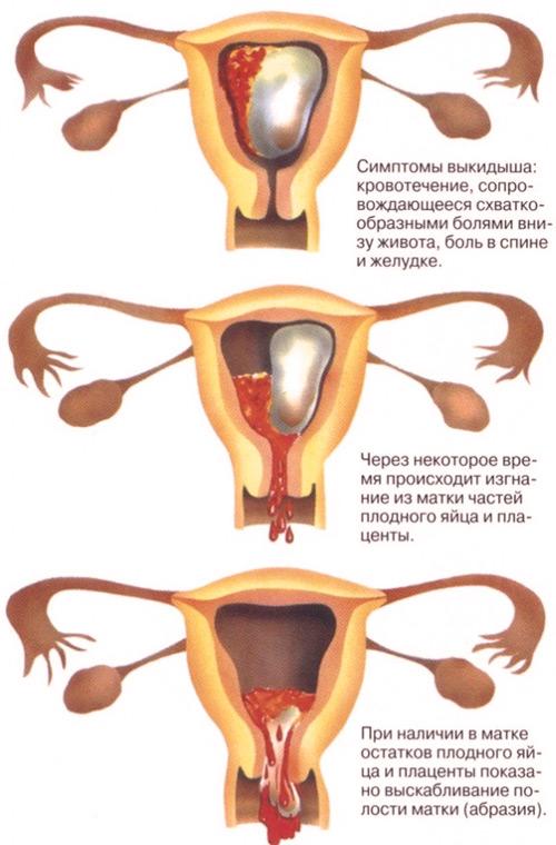 Беременность после выкидыша на ранних сроках без чистки