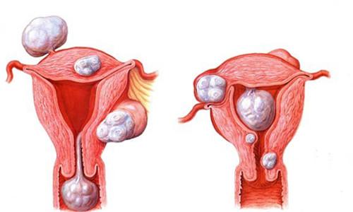Схема фибромы матки