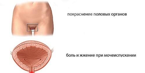Причины зуда в половых органах после секса с презервативом фото 131-202