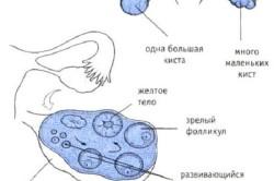 Различные виды кисты яичника
