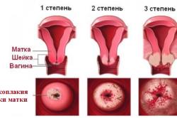 Схема лейкоплакии шейки матки