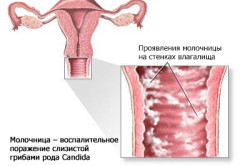становится ли вагина шире во время месячных