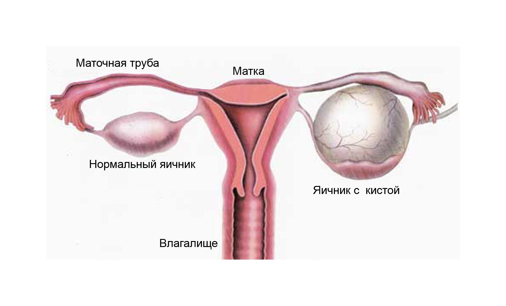 Боли яичника при сексе