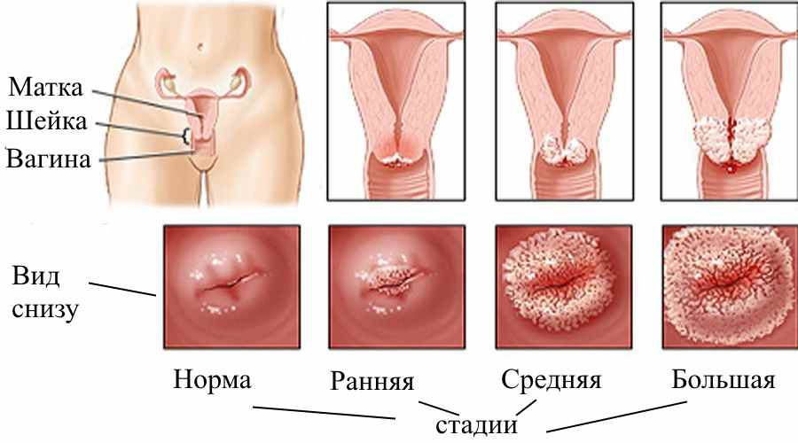 Www ru матка и половые губы секс