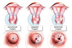 Стадии плоскоклеточного рака шейки матки