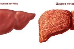 Превышения нормы онкомаркеров при циррозе печени